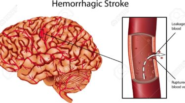 Brain stroke in Hindi